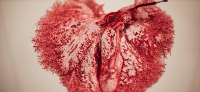 Vaatafgietsel varkenslever antoncoene 069 aangepast